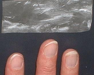 kind zupft sich die haut von fingern